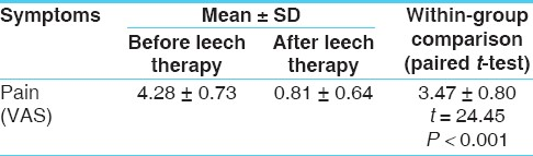 Table 1: The effect of leech therapy on pain in patients of osteoarthritis (<i>n</i> = 32)