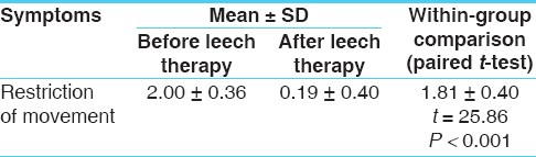 Table 5: The effect of leech therapy on restriction of movement in patients of osteoarthritis (<i>n</i> = 32)