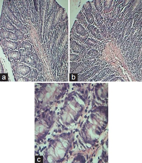 Figure 5: <i>Triphala</i> (300 mg/kg) treated group. (a and b) represent photomicrographs of H and E stained sections of rat colon showing a marked protection of <i>Triphala</i> (100 mg/kg) against distortion of epithelial surface; ×10. (c) Showing the intact goblet cells and low inflammatory cells infiltration; ×40.