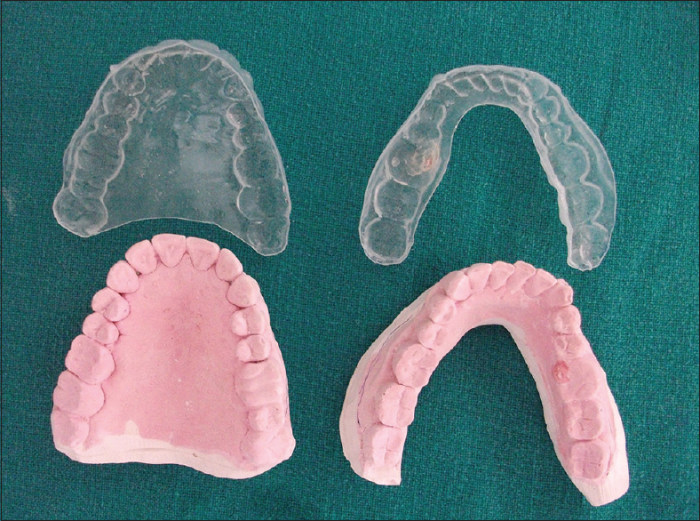 Figure 1: Customized vaccupress application trays and patient model of maxillary and mandibular arch