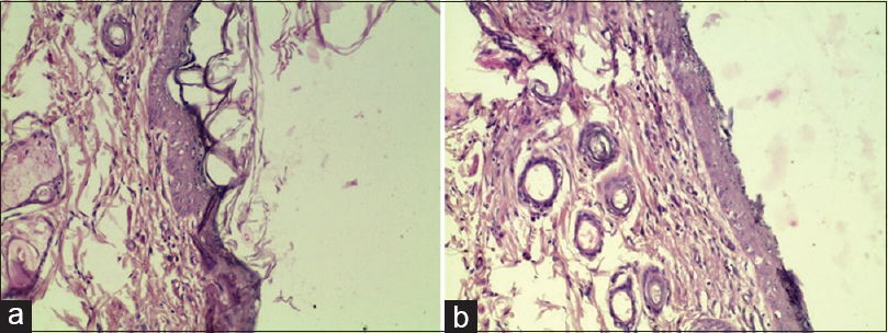 Figure 5: (a) Negative Control Day 15: Re-epithelialization with mild hyperplasia of epidermis and moderate hyperkeratosis (20x10). (b) <i>Jatyadi Ghrita</i> Day 15: Re-epithelialization with mild hyperplasia of epidermis (20x10)