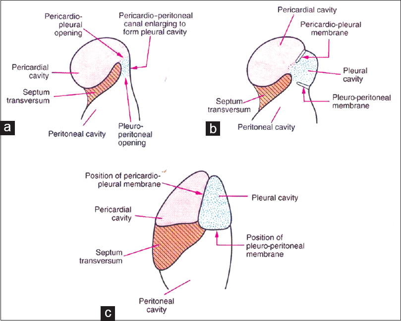 Figure 1: Formation of pleural cavity and its separation from pericardial and peritoneal cavities. (a) Pericardio-peritoneal canal enlarges to form the pleural cavity. The pleural cavity communicates freely with the pericardial and peritoneal cavities. (b) Gradual formation of pericardio-pleural and pleuro-peritoneal membranes and widening of the three cavities. (c) The pleural cavity is completely separated from the pericardial and peritoneal cavities by the formation of pericardio-pleural and pleuro-peritoneal membranes